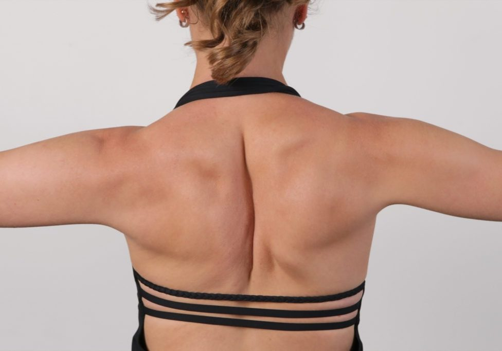 Scoliosis treatment with Erin Myers